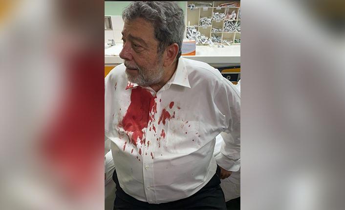 St. Vincent ve Grenadinler Başbakanının kafasına protesto sırasında taş isabet etti